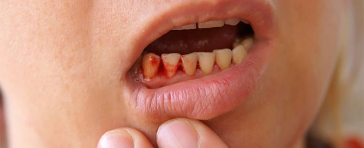 bleeding gums causes and prevention