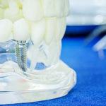 dental implants missing teeth solution