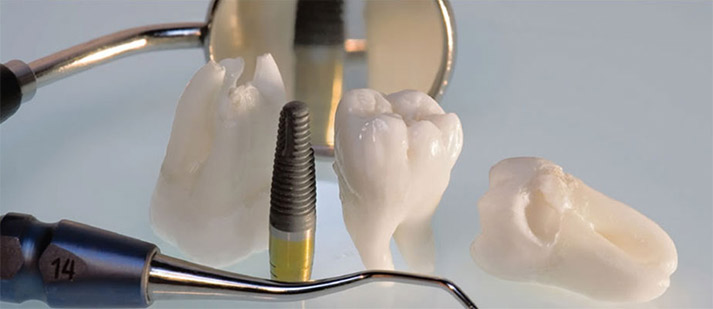 dental implants post treatment care