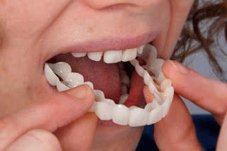 how snap-on teeth work
