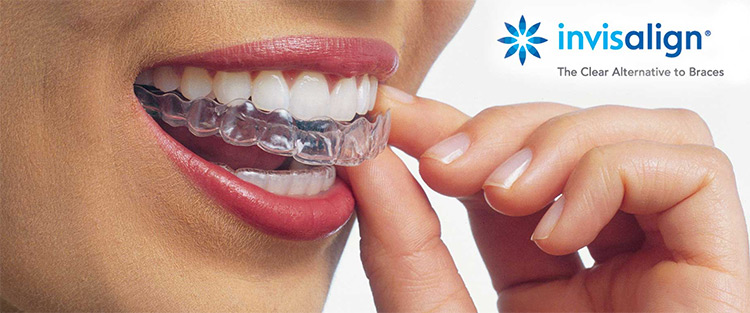 invisalign clear braces dentistry