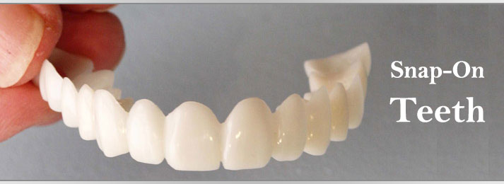 What is Snap-On Teeth and How does it Work?